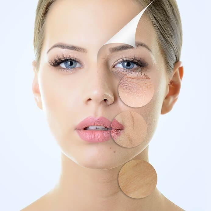 Welche falten mit botox und hyaluron behandelt werden